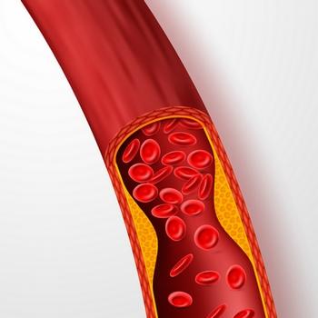 Manifestations de l'ischémie : douleur, dysfonctionnement de l'organe concerné, nécrose, ...
