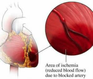 Ischémie, c'est la baisse ou l'interruption du flux sanguin vers un organe ou une partie du corps