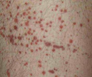 Purpura, apparition de plusieurs petites taches rouges à pourpre sur la peau ou les muqueuses