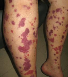 Symptômes du purpura : taches ou traces linéaires rouges, gonflement, hématome, fièvre en cas d'infection, ...