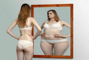 Anorexie mentale, psychopathologie de l'apparence se manifestant par des perturbations au niveau de l'alimentation