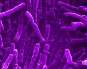La blennorragie est une maladie sexuellement transmissible due à la présence d'une bactérie, appelée gonocoque
