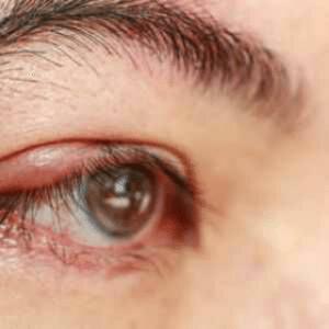 Manifestations de la blépharite : rougeur, brûlure, squames, œdème, infection, ulcère, ...