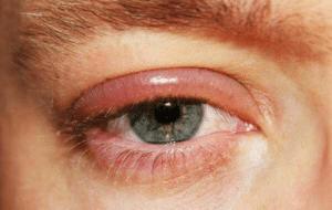 La blépharite est une inflammation du bord des paupières