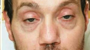 Manifestations et symptômes du botulisme : atteinte des nerfs optiques, troubles digestifs, nausées, affaiblissement, ...