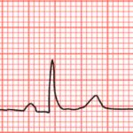 Bradycardie