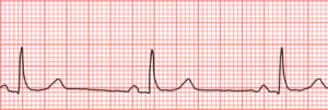 La bradycardie est une anomalie du rythme cardiaque, qui se traduit par de faibles pulsations