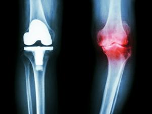 La combinaison de chondroïtine et de glucosamine a eu des effets sur les excroissances osseuses