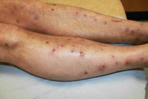 Prurigo, lésion dermatologique avec surélévations prurigineuses