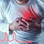Tachycardie2