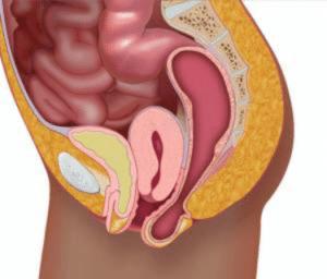 Prolapsus d'organe pelvien, abaissement des organes du pelvis