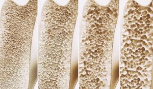 L'astragale prévient le développement d'une ostéoporose