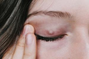 Manifestations du chalazion : tuméfaction, nodules, lésions douloureuses, ...