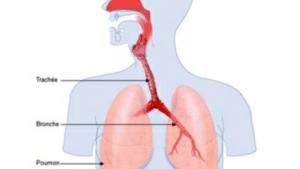 Coqueluche, infection des voies respiratoires due à la présence de bactérie de type Bordetella