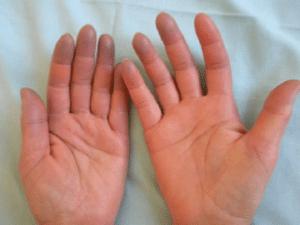 Cyanose, coloration bleuâtre des tissus due à un manque d'oxygénation dans le sang