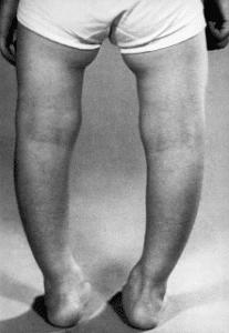 Rachitisme, c'est un trouble du développement du système osseux chez les enfants