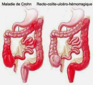 À la différence de la maladie de Crohn, la rectocolite hémorragique débute par le rectum avant d'atteindre le côlon