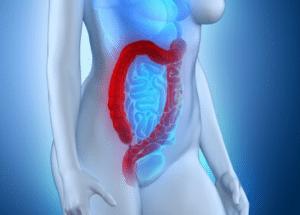 Symptômes de la rectocolite hémorragique : diarrhées, douleurs abdominales, présence de sang et de mucus, ...