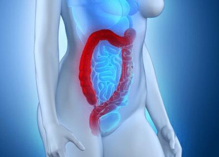 Rectocolite hémorragique