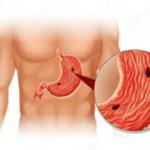 Ulcere