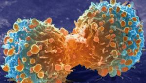 Les extraits de la garcinia peuvent inhiber la prolifération des cellules cancéreuses