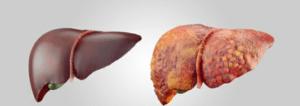 La garcinia protège le foie en cas de stéatose hépatique (foie gras)