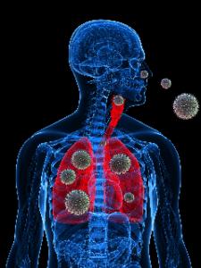 Rhinite allergique, une maladie due à une réaction excessive de l'organisme face à des allergènes