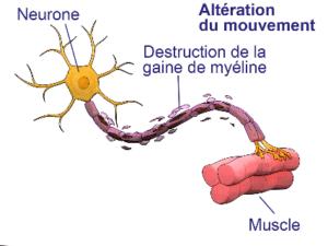 Effets de l'hydroxycitrate sur les scléroses en plaque