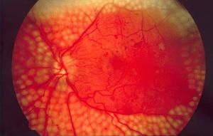 Rétinopathie diabétique, une des complications du diabète caractérisée par une atteinte de la rétine