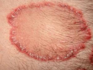 Teigne, maladie infectieuse liée à la présence de champignons