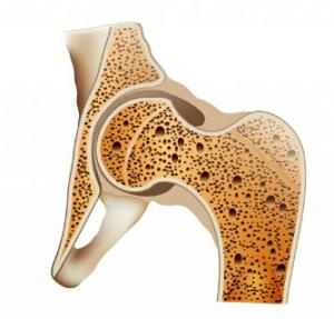 Des télomères courts favorisent la perte de la densité osseuse