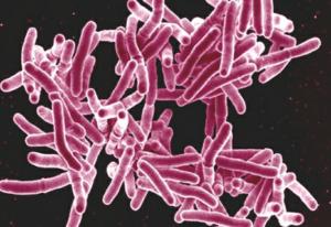 Tuberculose, infection bactérienne due à la présence de bacille de Koch