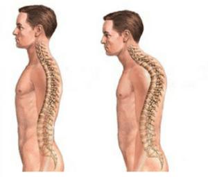 Cyphose, ou hypercyphose, est une difformité de la colonne vertébrale