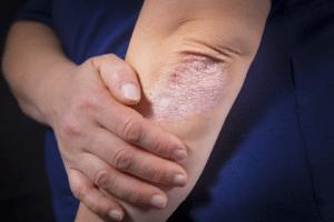 Le psoriasis se présente sous différentes formes : plaques, gouttes, pustules, atteinte des ongles, ...