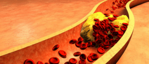 butyrate et cholestérol
