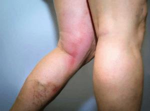 thrombophlébite
