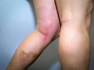 Thrombophlebite