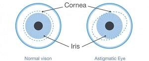 Traitements naturels de l'astigmatisme
