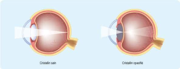 Opacification du cristallin