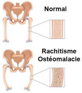 ostéomalacie