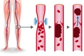 thromboses